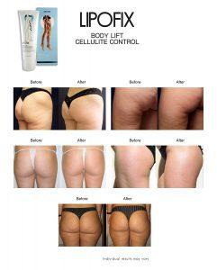 was hilft gegen cellulite, Thalgo Cellulite Creme, cellulite wegbekommen