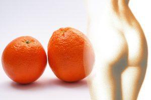 orangenhaut, cellulite, cellulite was tun
