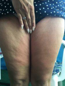Cellulite weg, Cellulite Creme