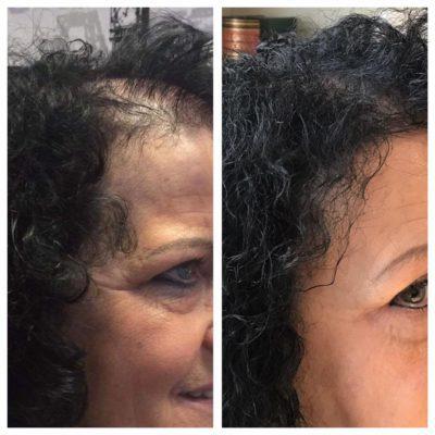 Cellulite weg, Hautcreme, Haarwuchsmittel