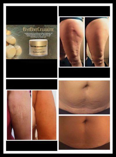 was hilft gegen Cellulite, Cellulite Creme, Cellulite wegbekommen,